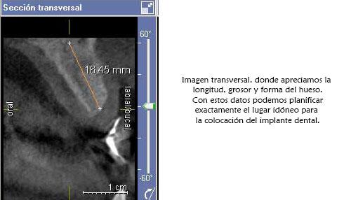 TAC-escaner-dental-barato-implantes-dentales-1