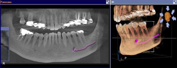 TAC-escaner-dental-barato-implantes-dentales-2