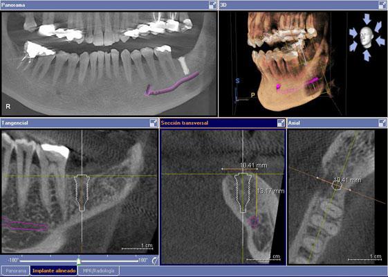 TAC-escaner-dental-barato-madrid-2